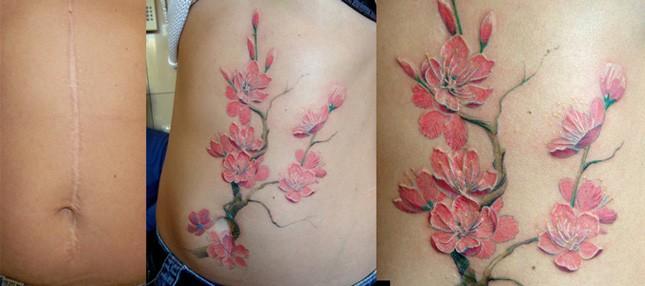 Перекрыть шрам на животе от кесарева сечения татуировкой